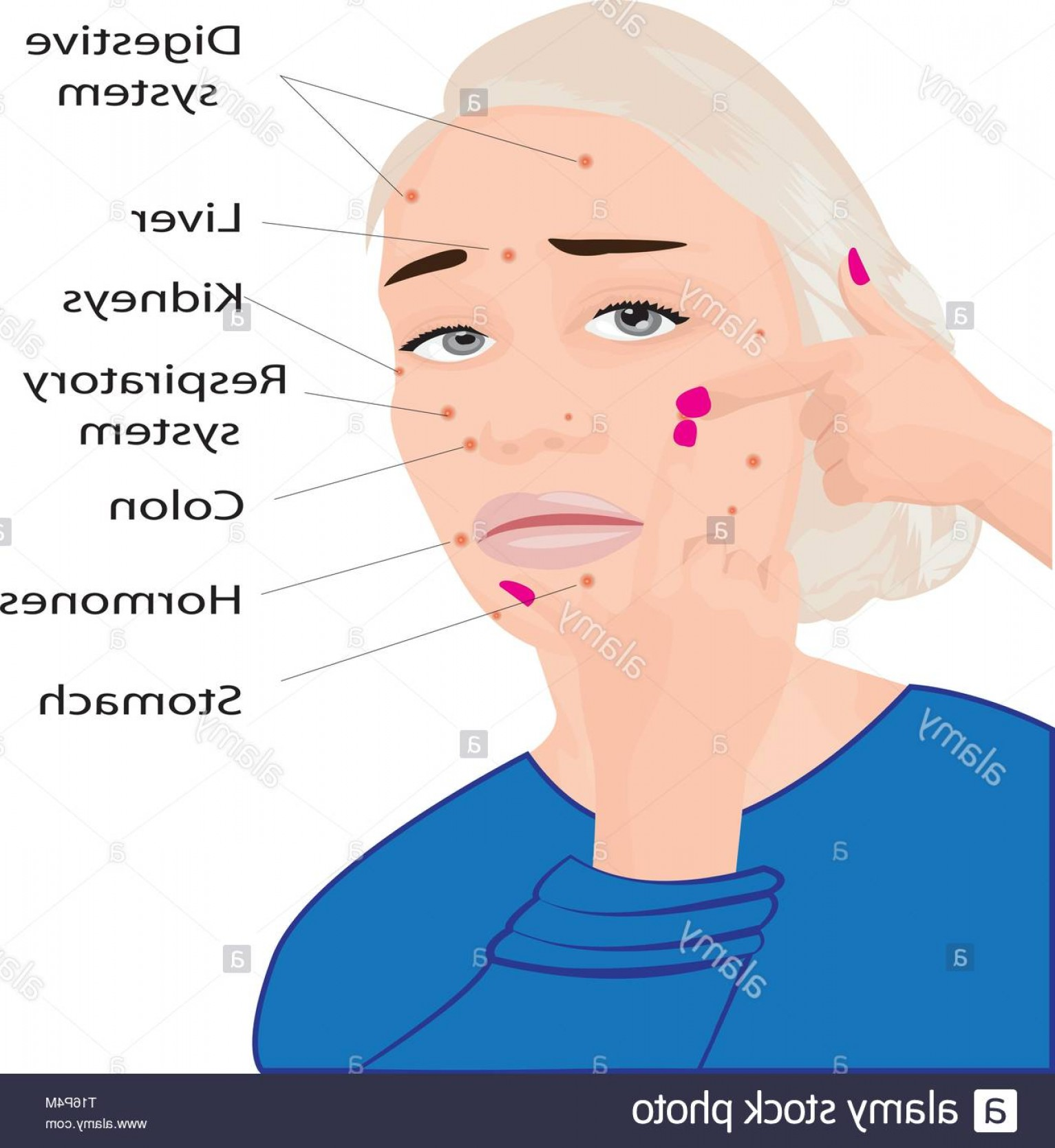 Vector Face Mapping: Acne On A Face And What They Mean Face Mapping What Your Acne Telling You Info Graphic Image