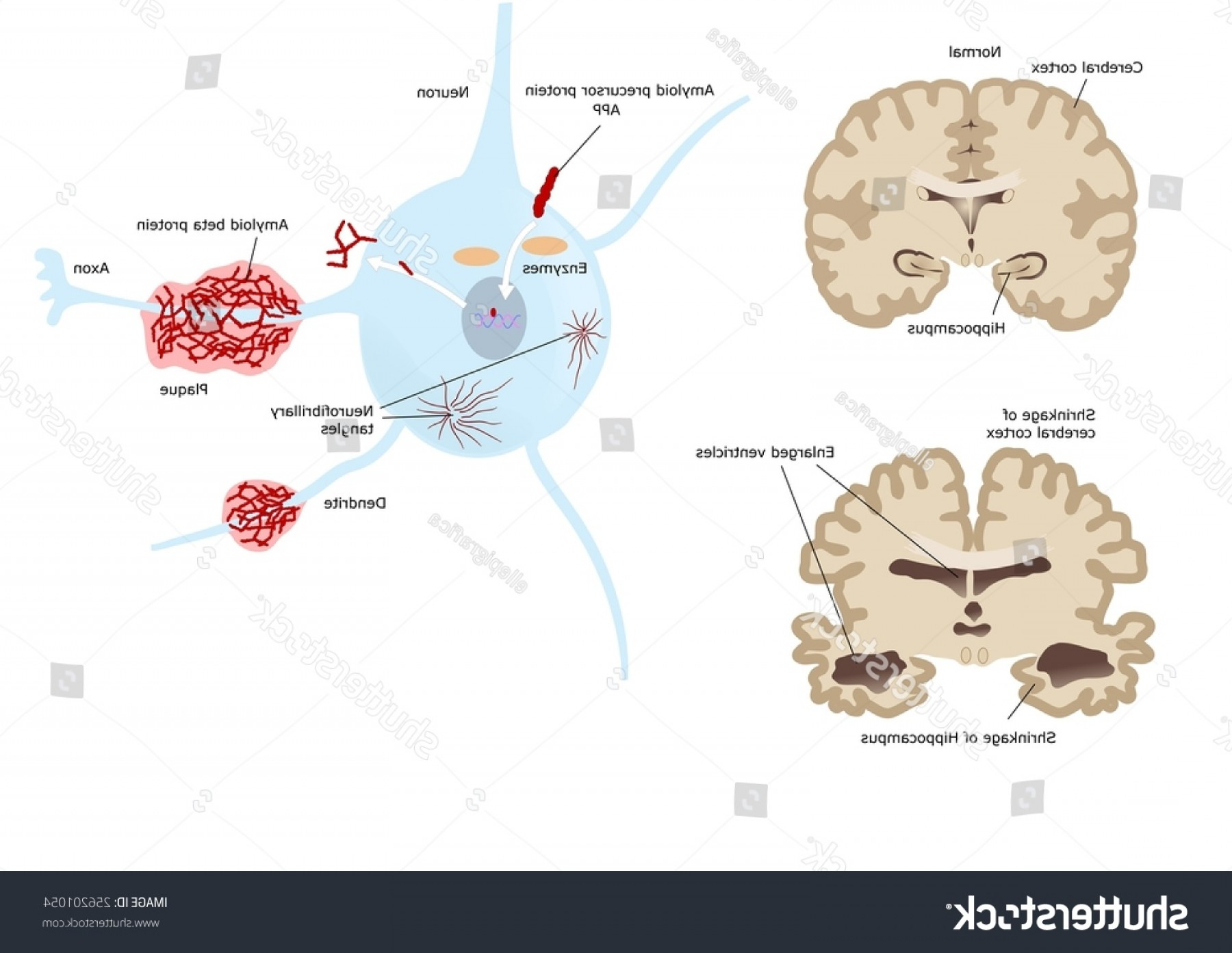Vectors Diseases Caused By: Alzheimer Disease Caused By Beta Protein