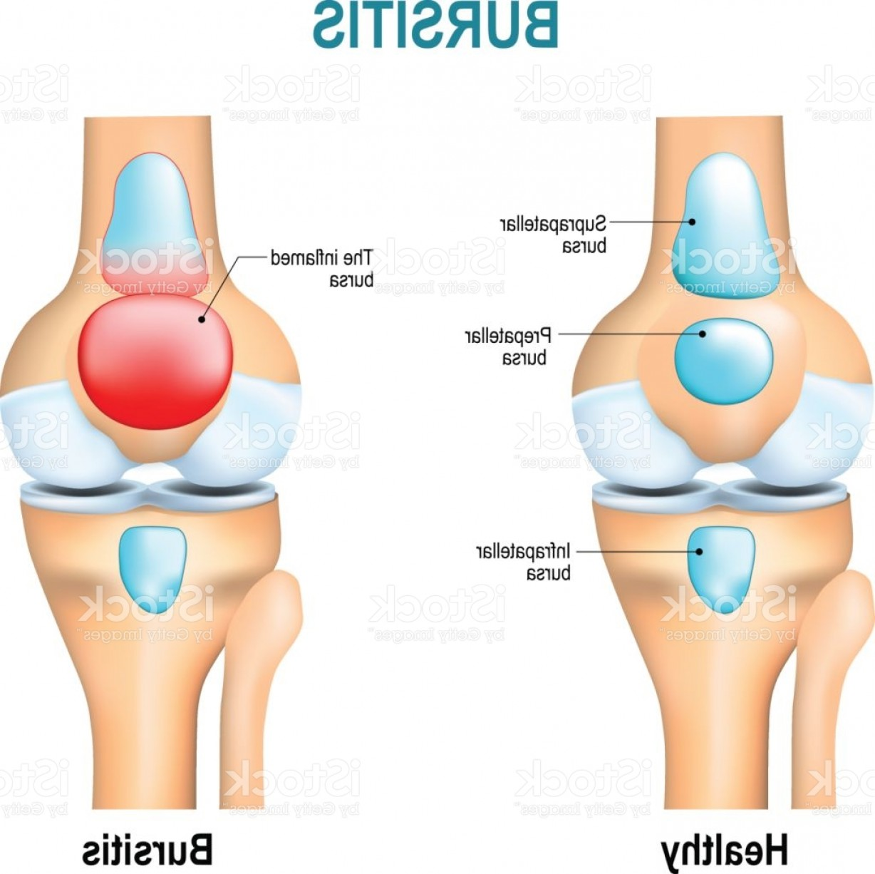 Knee Board Vector: Bursitis Healthy Knee And Knee With Bursitis Gm