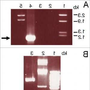 Expression Region Vector Cloning Pet21a-D: Fast And Accurate Assembly Of A