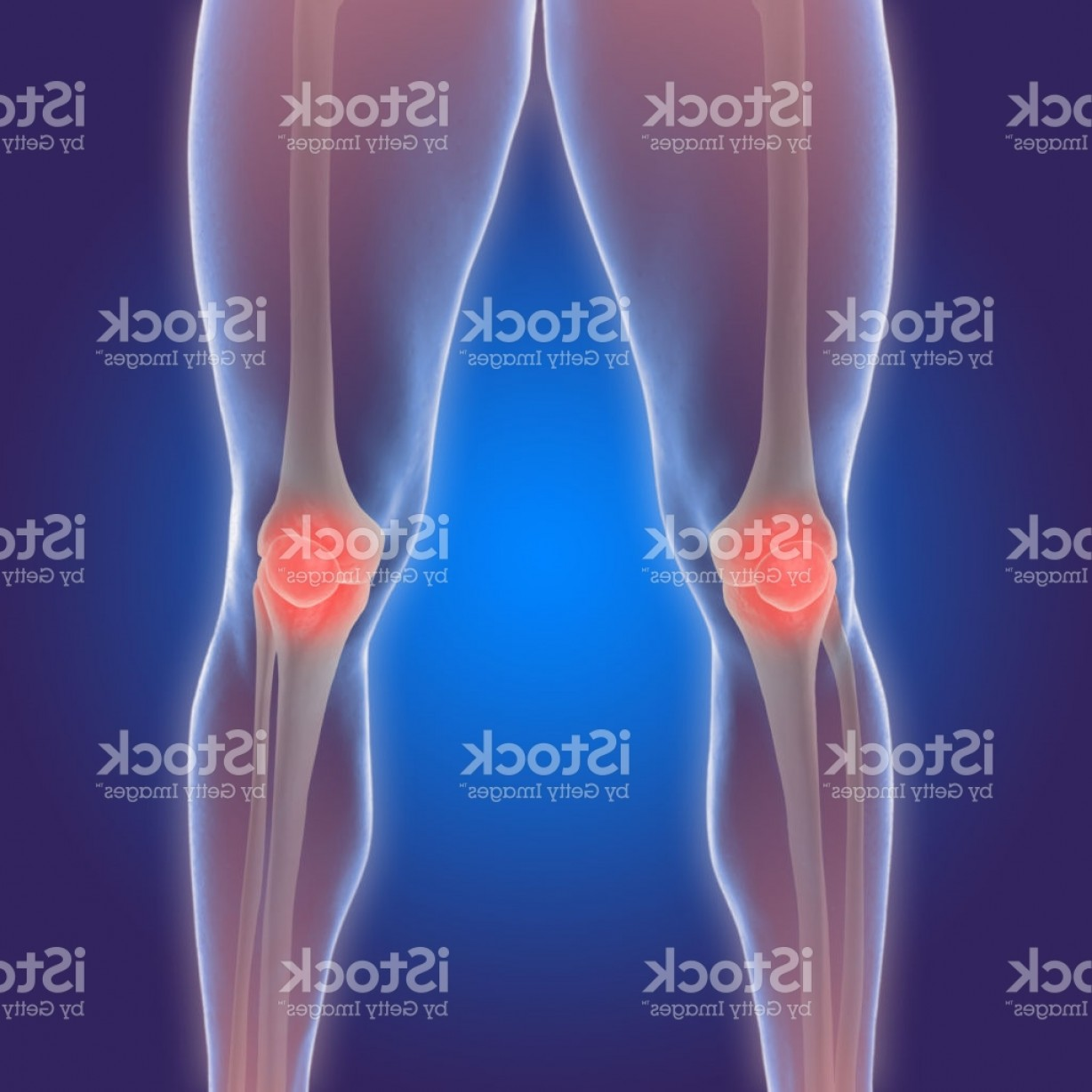Knee Board Vector: D Illustration Of The Human Knee With Arthritis Pain Gm