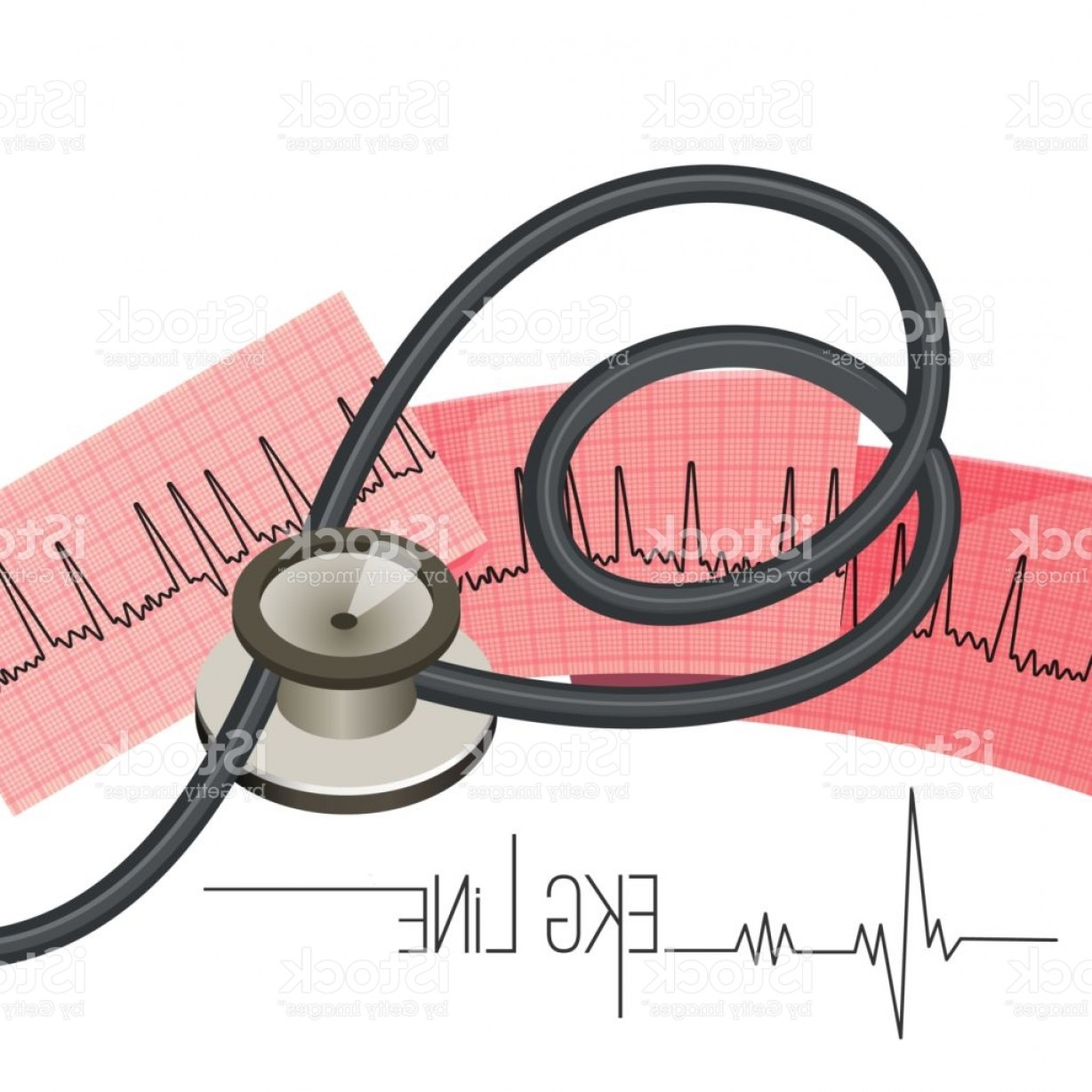 Heart Stethoscope With EKG Lines Vector: Ekg Line On Long Paper Sheet And Medical Stethoscope Gm