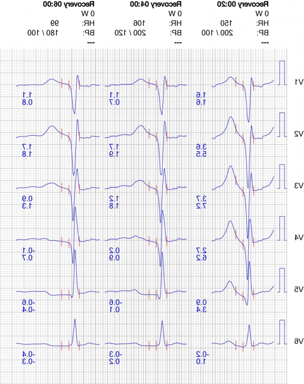 Positive EKG Vectors: Exercise Stress Test Treadmill Ecg Indications Background