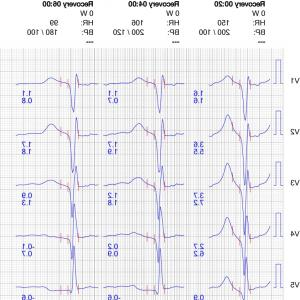 Positive EKG Vectors: Normal Complexes In Frontal Leads And Precordial Leads