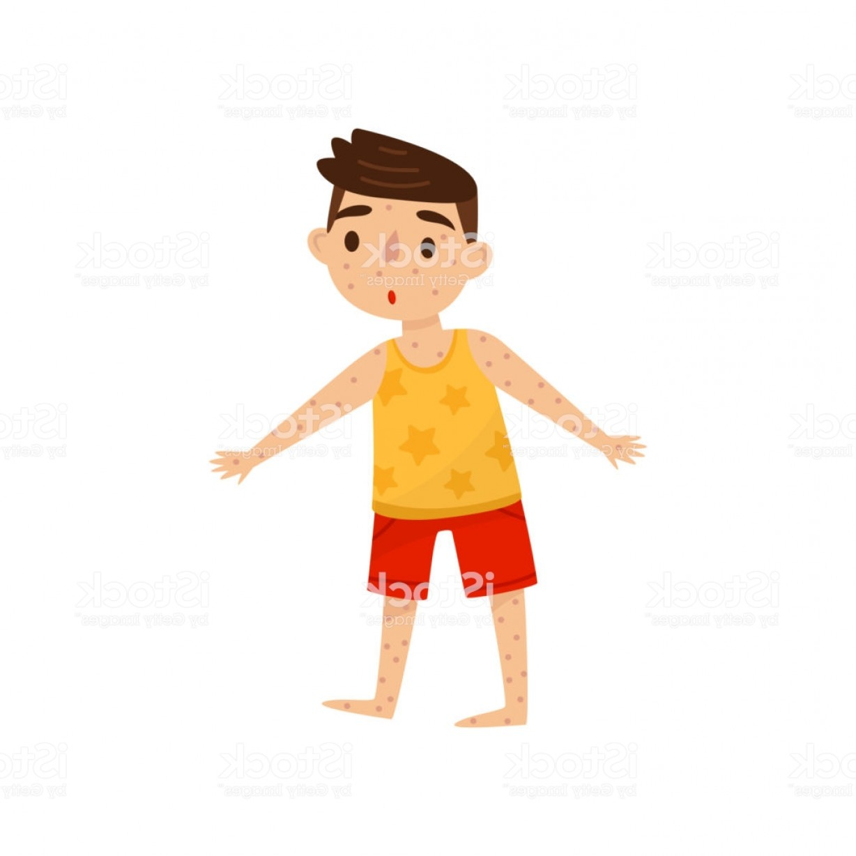 Infectious Disease Vector: Little Kid With Rash On His Body Boy With Measles Infectious Disease Child With Gm