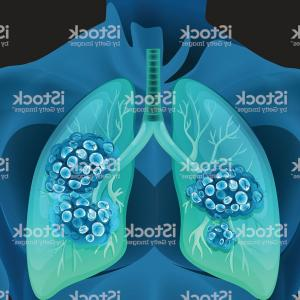 Lung Vector Shirt: Lung Cancer Human Body Gm