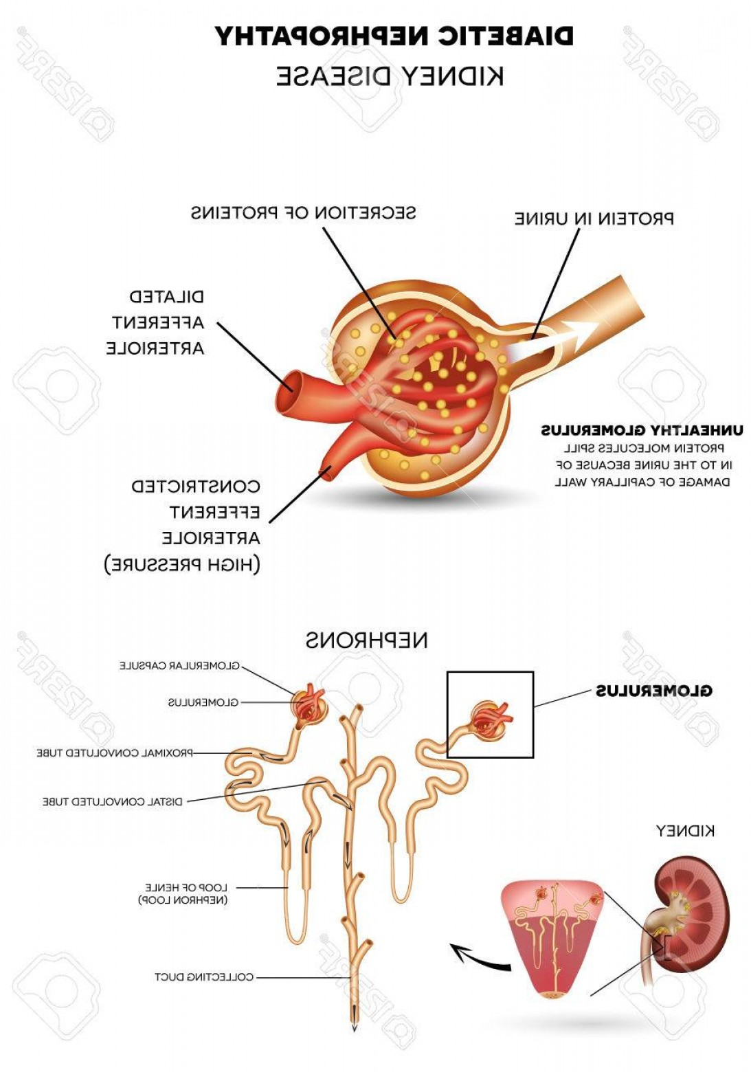 Vectors Diseases Caused By: Photostock Vector Diabetic Nephropathy Kidney Disease Caused By Diabetes Detailed Anatomy Of Glomerulus A Part Of The