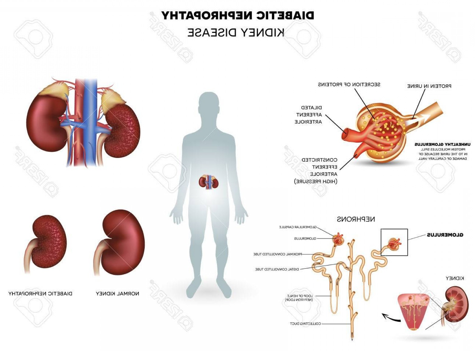 Vectors Diseases Caused By: Photostock Vector Diabetic Nephropathy Kidney Disease Caused By Diabetes Detailed Info Poster Beautiful Colorful Desig