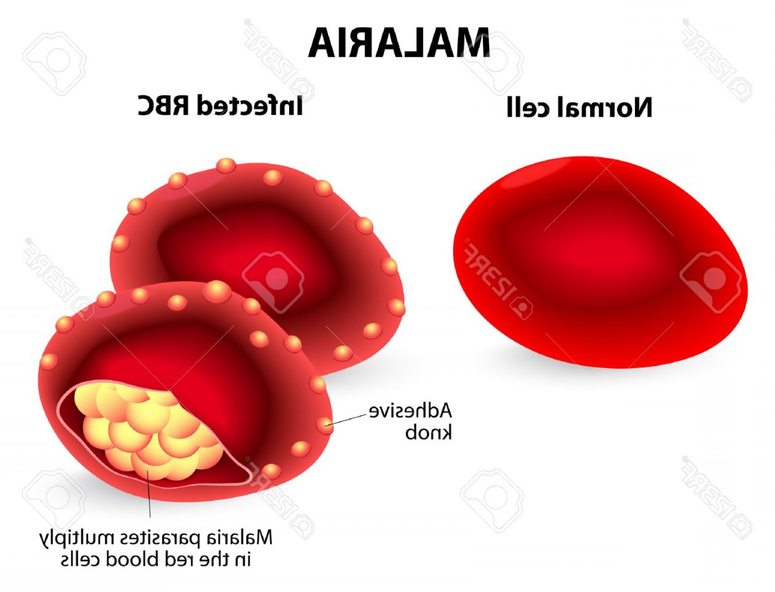 Diseases Spread By Vectors: Photostock Vector Malaria Normal And Infected Red Blood Cells Malaria Is A Disease Caused By A Parasite Called Plasmod