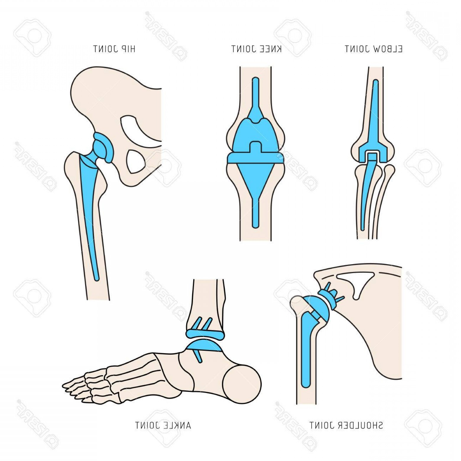 Line Art Human Body Skeleton Labeled Bones Of The Vector: Photostock Vector Medical Illustration Of The Implantation Of The Bone Joints In The Human Skeleton Layout Of Implants