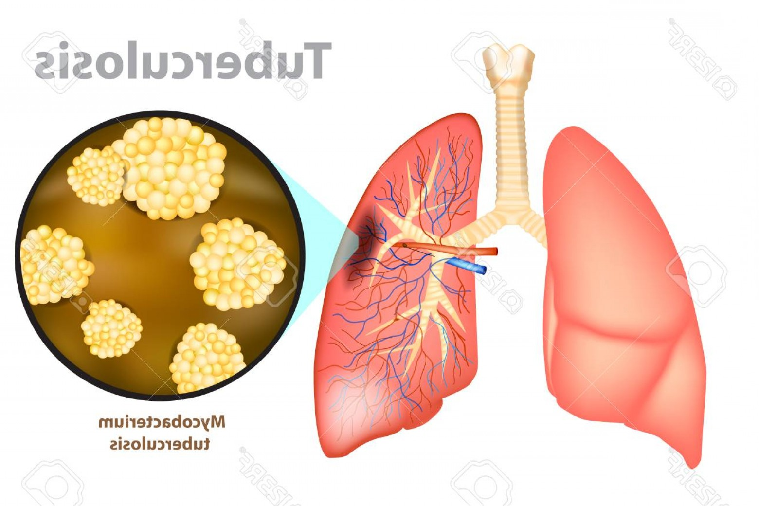 Infectious Disease Vector: Photostock Vector Tuberculosis Is An Infectious Disease Caused By The Bacterium Mycobacterium Tuberculosis