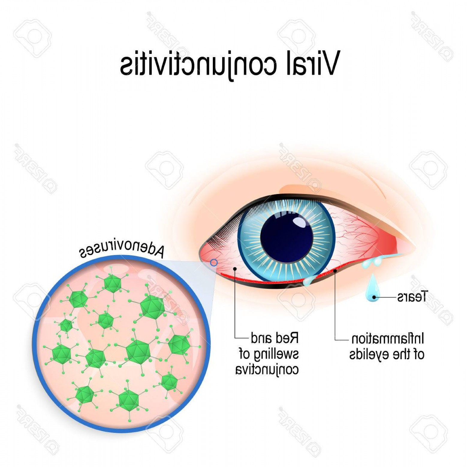 Vector Virus That Causes: Photostock Vector Viral Conjunctivitis Adenoviruses Is The Cause Of Viral Conjunctivitis