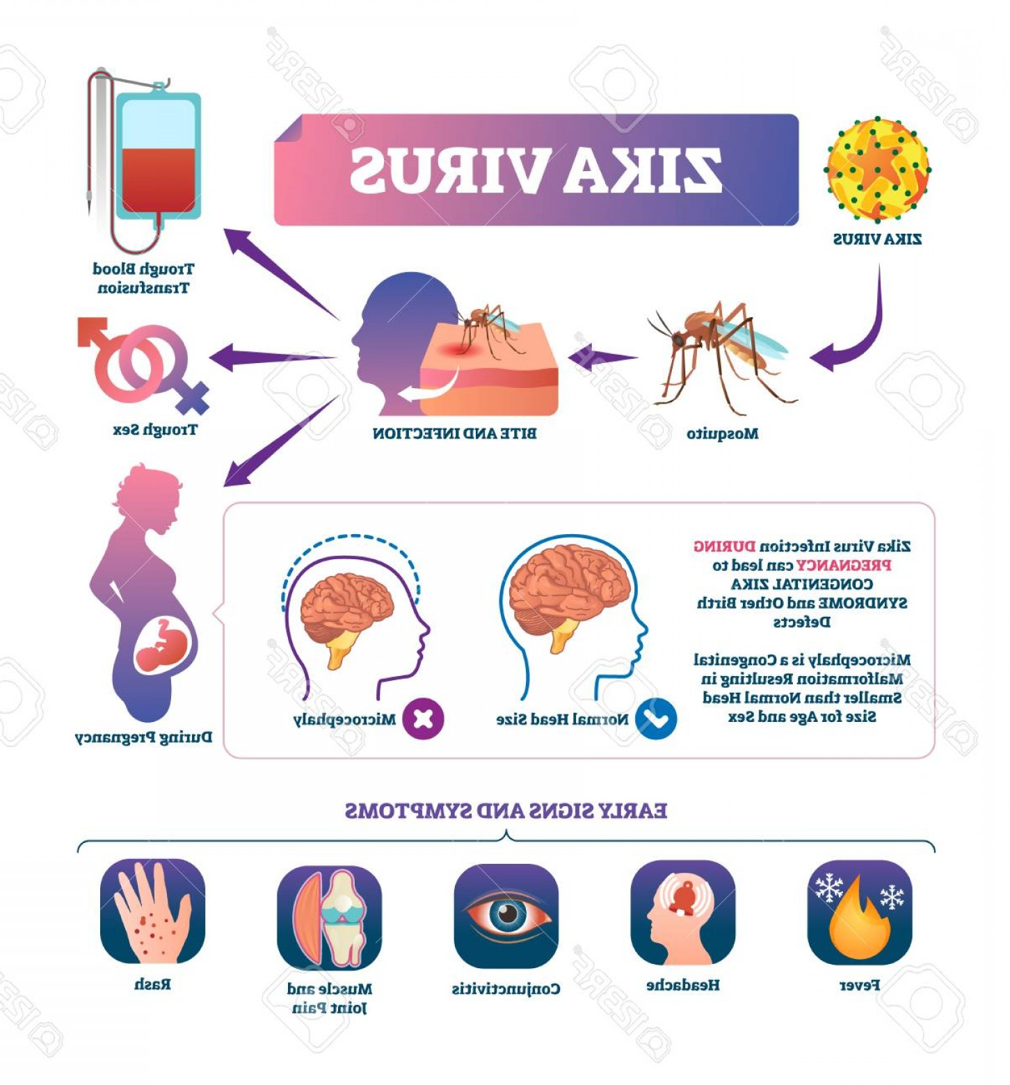 Vector -Borne Transmission Of Disease: Photostock Vector Zika Virus Vector Illustration Labeled Mosquito Bite Infection Signs And Symptoms Scheme Epidemic Di