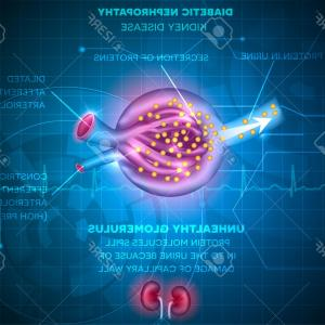 Vectors Diseases Caused By: Photostock Vector Diabetic Nephropathy Kidney Disease Caused By Diabetes Renal Corpuscle And Glomerulus A Part Of The