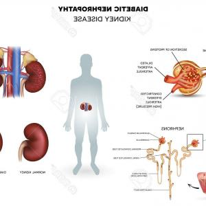 Vectors Diseases Caused By: Cytomegalovirus Diseases Caused By Cytomegalovirus Infographics Vector Illustration Gm