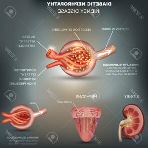 Vectors Diseases Caused By: Photostock Vector Diabetic Nephropathy Kidney Disease Abstract Blue Background Disease Caused By Diabetes Renal Corpus