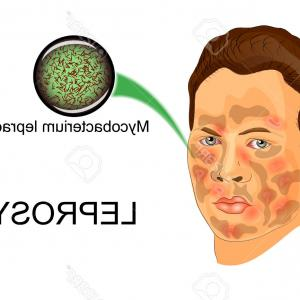 Vector Disease Agent: Photostock Vector Illustration Of Person Sick Suffering From Leprosy And The Agent Of This Disease Under The Microscop
