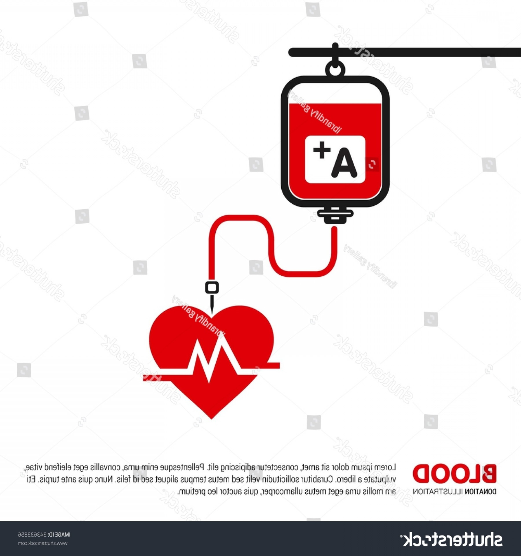 Positive EKG Vectors: Positive Blood Transformation Via Drip Ecg