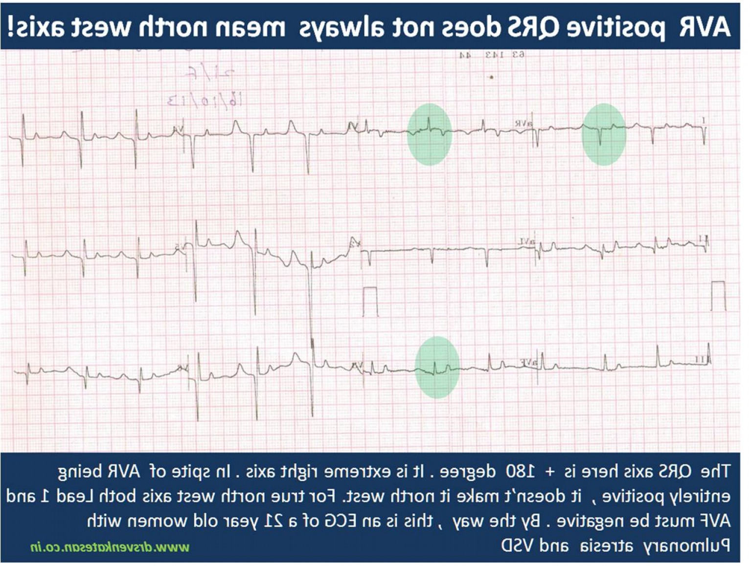 Positive EKG Vectors: This Ecg Troubled Us For A While