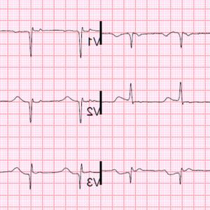 Positive EKG Vectors: Exercise Stress Test Ecg Symptoms Blood Pressure Heart Rate Performance