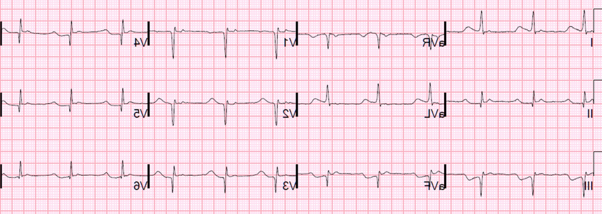 Positive EKG Vectors: True Positive St Elevation In Avl Vs